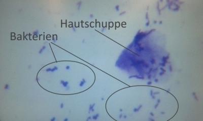 Bakterien von der Haut eines allergischen Hundes unter dem Mikroskop